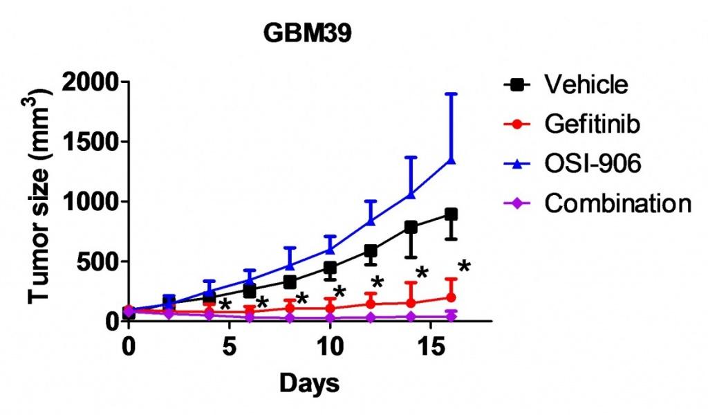 glioblastoma3