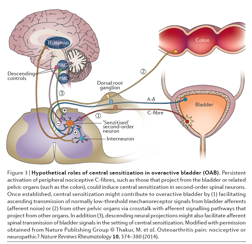 Hypothetical roles of central sensitization in overactive bladder