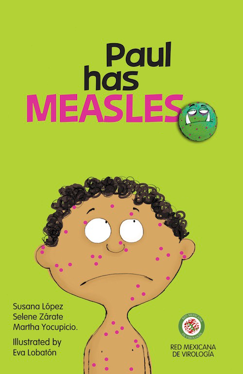 Paul Has Measles
