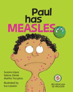 Paul Has Measles