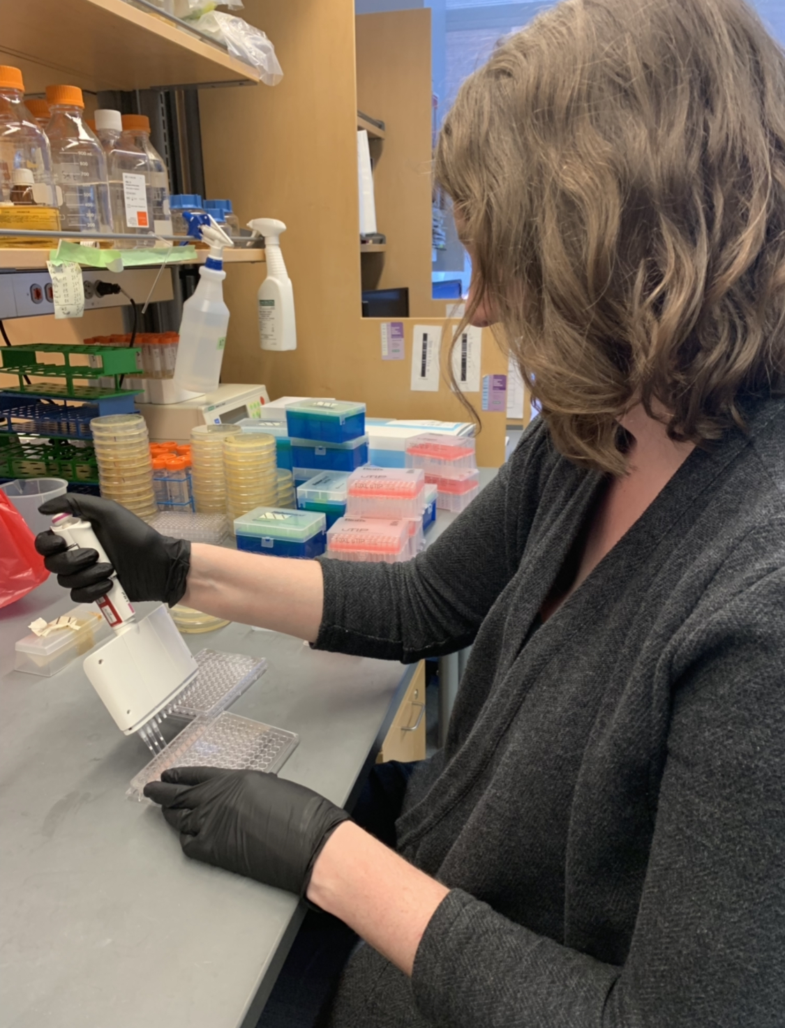 Aimee Wilde Graduate Student in the Cassat Lab - Department of Pathology, Microbiology, and Immunology